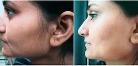 Top 100 Dermatologists in Aurangabad-Maharashtra - Best Skin
