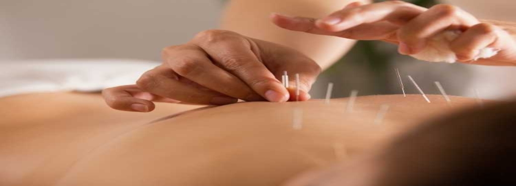 Image result for acupuncture doctors in delhi