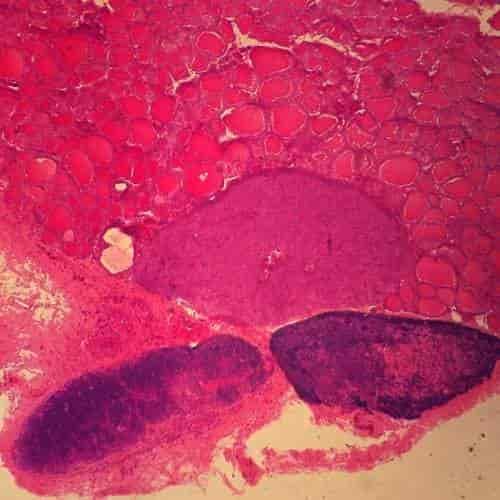 Buy Mammal Thyroid Gland And Parathyroid Gland Sec 7 M H Amp E